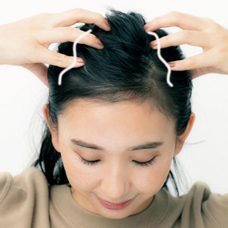 おでこを覆うのが前頭筋、頭頂部