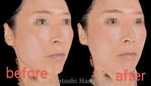 加齢変化により顔の脂肪は減少し