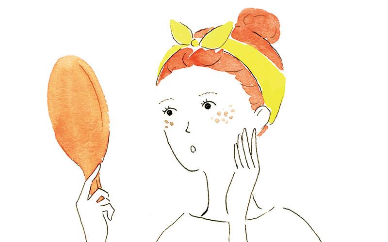 30代は要注意!「マスク肝斑」ができてしまったら、まずすべきこと